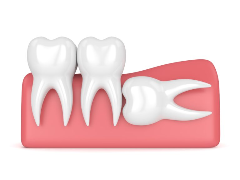 3-d graphic showing an impacted wisdom tooth lying down in the gum