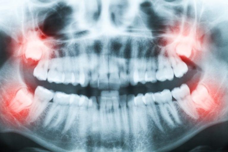 xray of wisdom teeth in the jaw bone