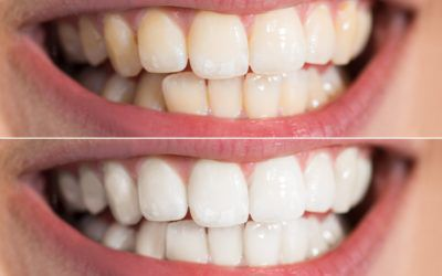 3 Procedures For Whitening Your Teeth